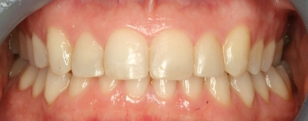 smiletru aligners after treatment