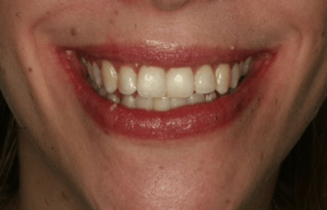Orthodontic case study 1 Image 2